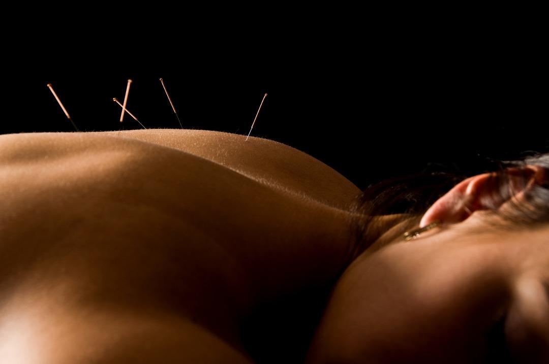Client receiving acupuncture